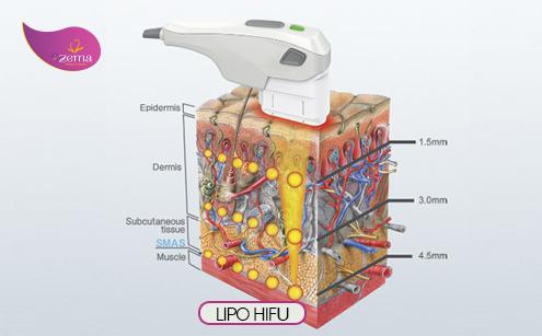 Giảm mỡ bằng công nghệ Lipo Hifu
