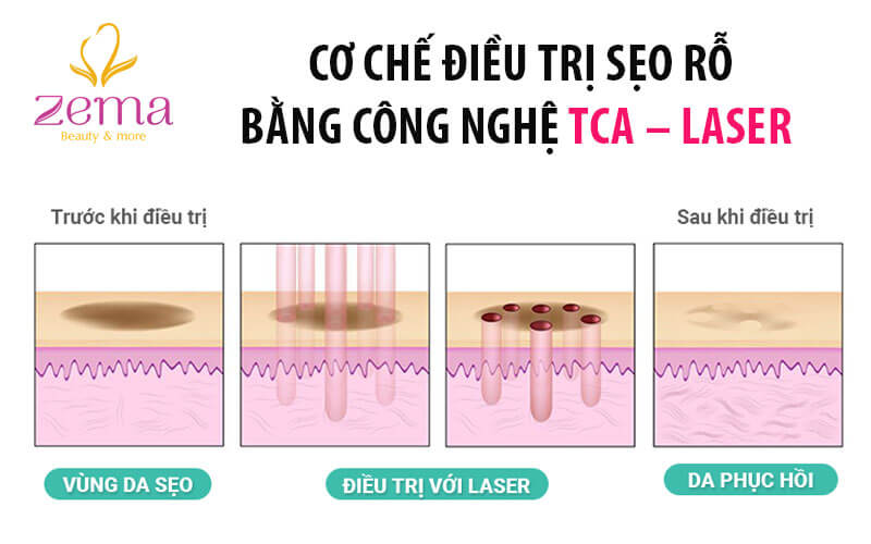 cong-nghe-TCA-laser1