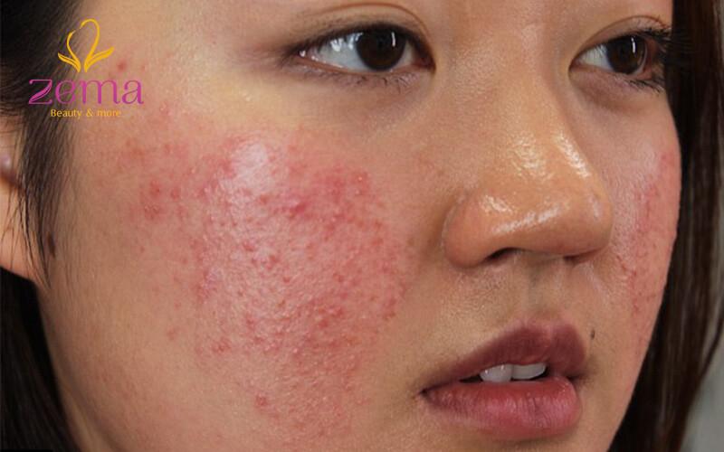 Da mặt bị dị ứng mỹ phẩm