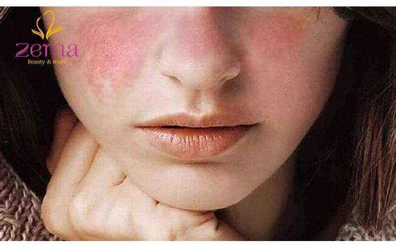 Biểu hiện khi da mặt bị dị ứng