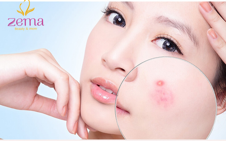 Da mặt nổi mụn dị ứng