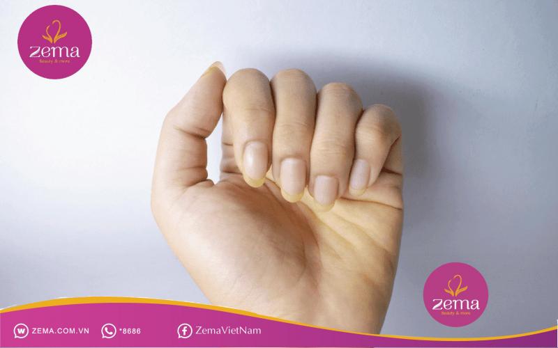 Móng tay vàng là biểu hiện nguy cơ mắc phải bệnh nấm móng, nhiễm độc tuyến giáp, vảy nến,...khi sử dụng sơn móng tay kém chất lượng.