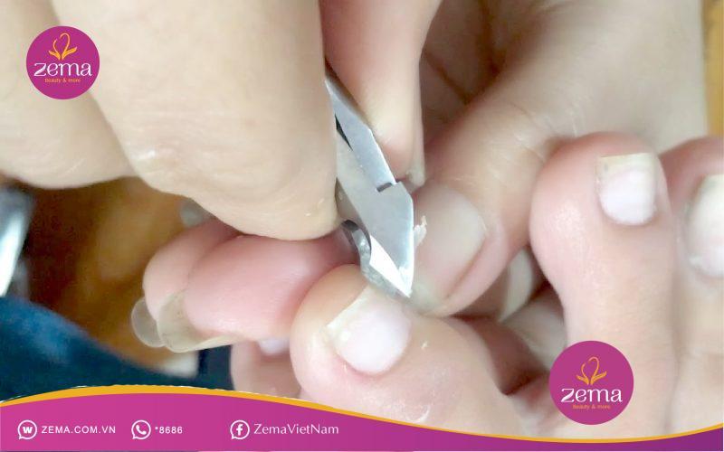 Nhiều cơ sở làm nail không đầy đủ dụng cụ chuyên dụng là tác nhân gây ra các căn bệnh lây nhiễm  nghiệm trọng cho khách hàng.