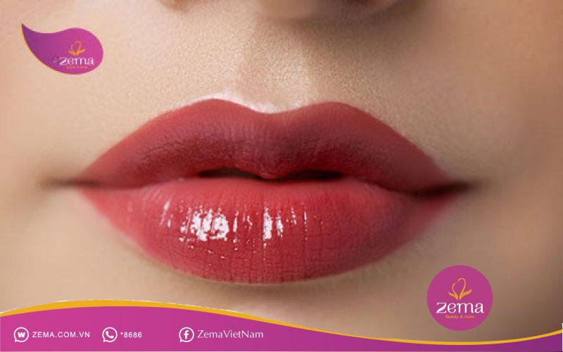 So sánh giữa trị thâm môi bằng Laser và xăm môi