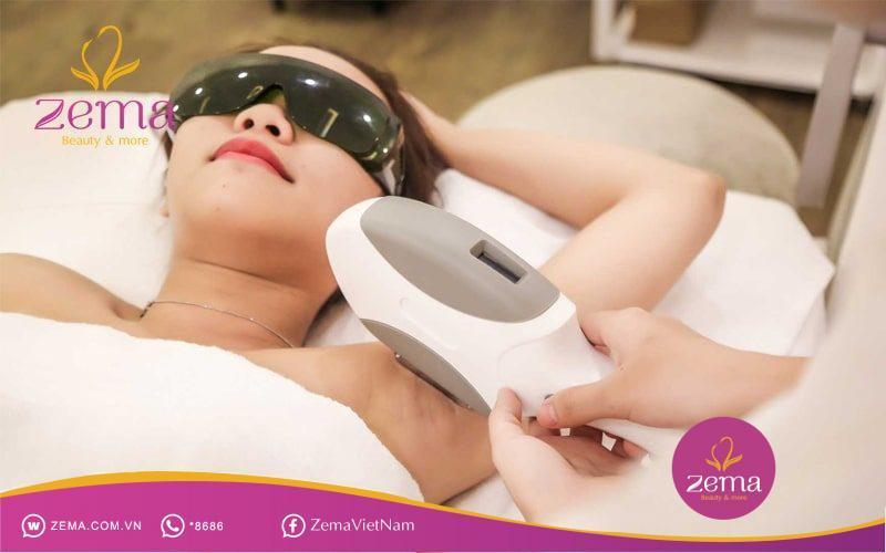 Triệt lông bằng công nghệ E-Light hiệu quả với tất cả loại lông trên cơ thể