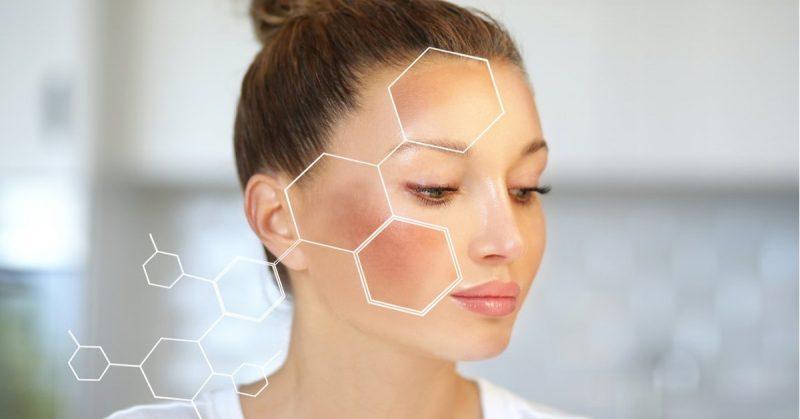 Điều trị da nám bằng laser có thực sự hiệu quả?