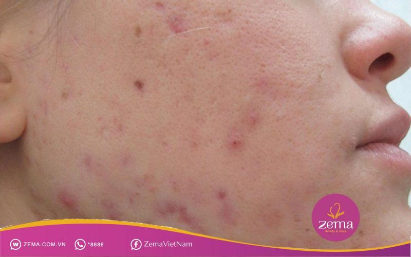 Tìm ngay cách trị mụn thâm cải thiện thẩm mỹ cho làn da và khuôn mặt