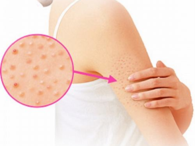 Bệnh viêm nang lông là gì