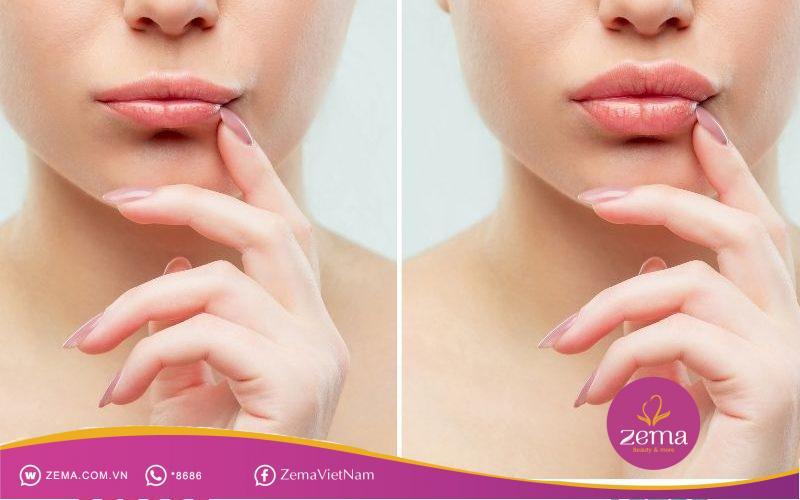 Da môi cũng cần được tẩy tế bào chết