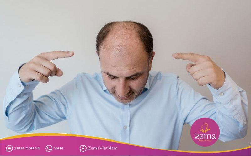 Hói ở nam giới có thể ở nhiều mức độ khác nhau