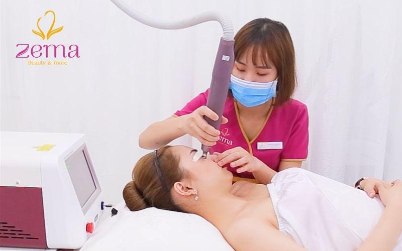 Điều trị thâm quầng mắt bằng laser như thế nào?