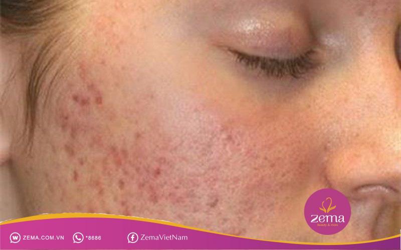 Thâm mụn xuất hiện trên khuôn mặt khiến làn da trở nên kém tươi tắn.