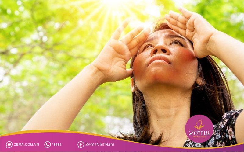 Ánh nắng mặt trời có thể làm da bị nám