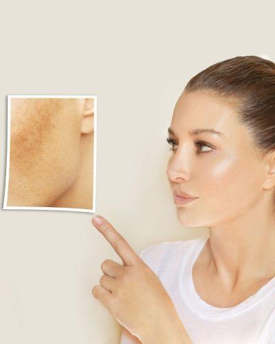 Nám da có thể xuất hiện bất cứ đâu trên gương mặt