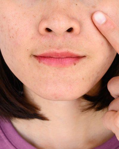 Nám da là một tình trạng da phổ biến