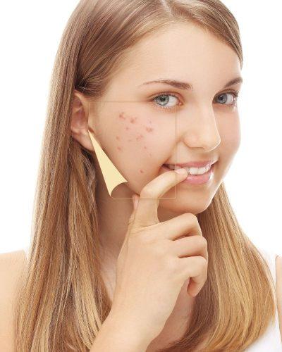 Có rất nhiều nguyên nhân gây thâm mụn ở da