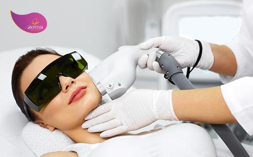 Ưu điểm của phương pháp điều trị sẹo rỗ bằng laser