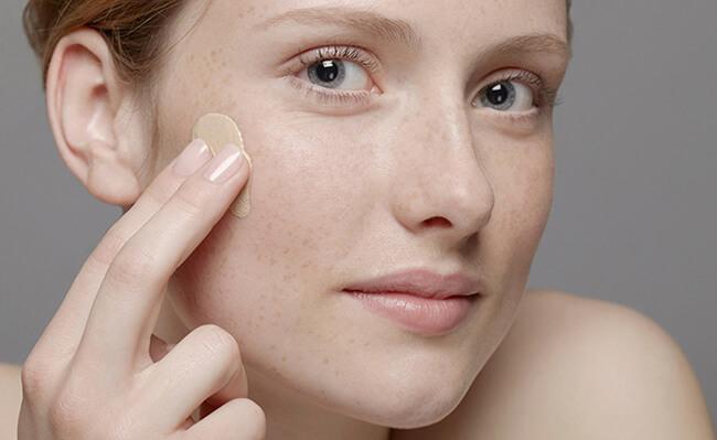 Tại sao phụ nữ thường bị nám da?