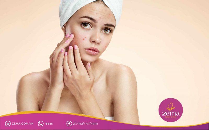 Không nên tự ý nặn mụn để giúp da được bảo vệ tốt nhất