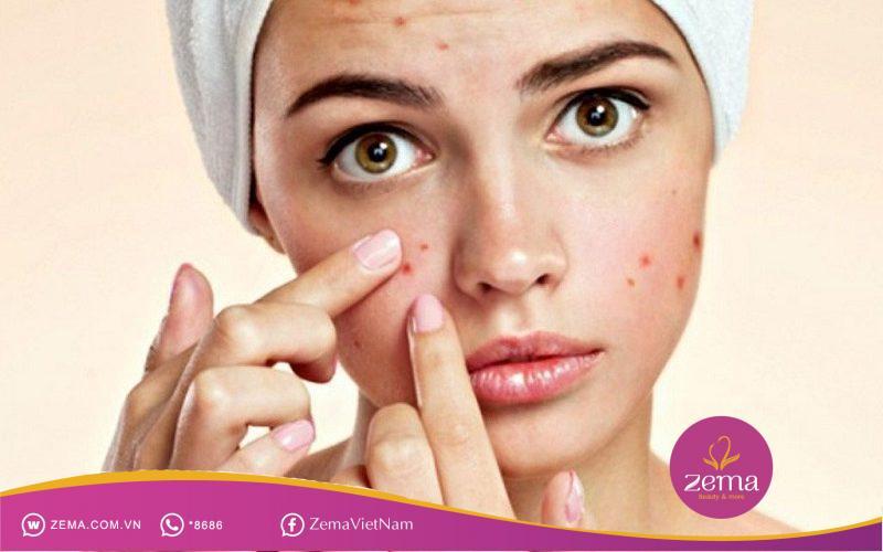 Chọn sai sản phẩm chăm sóc da cũng khiến da bạn bị mụn