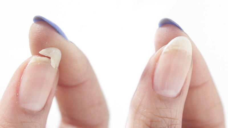 Móng tay yếu và dễ bị gãy - Nguyên nhân do đâu?