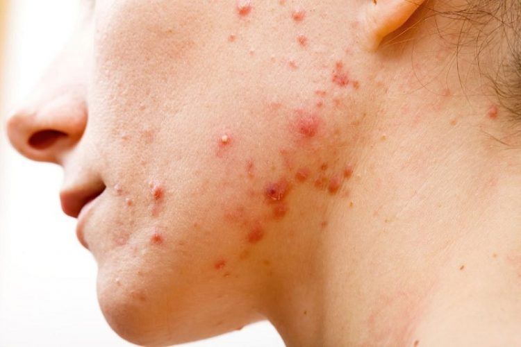 Mụn viêm là một trong những vấn đề trên da khó điều trị.