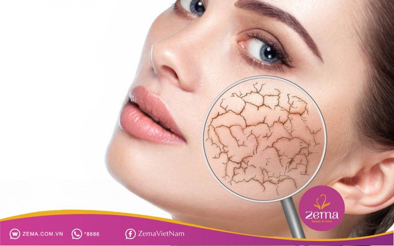 Khi da khô phát sinh nám, cần đến ngay địa chỉ điều trị da uy tín trị dứt điểm