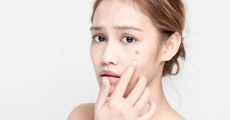 Để tìm cách trị mụn nhanh chóng còn phụ thuộc vào tình trạng mụn của bạn