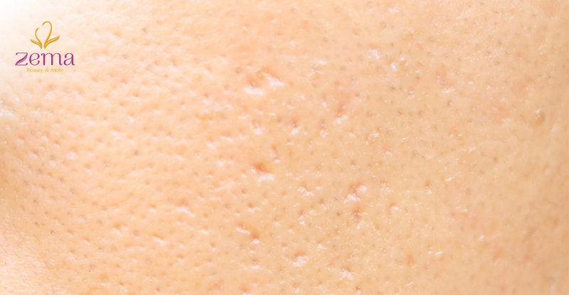 Nguy cơ viêm nang lông do sử dụng dao kéo triệt lông tại nhà