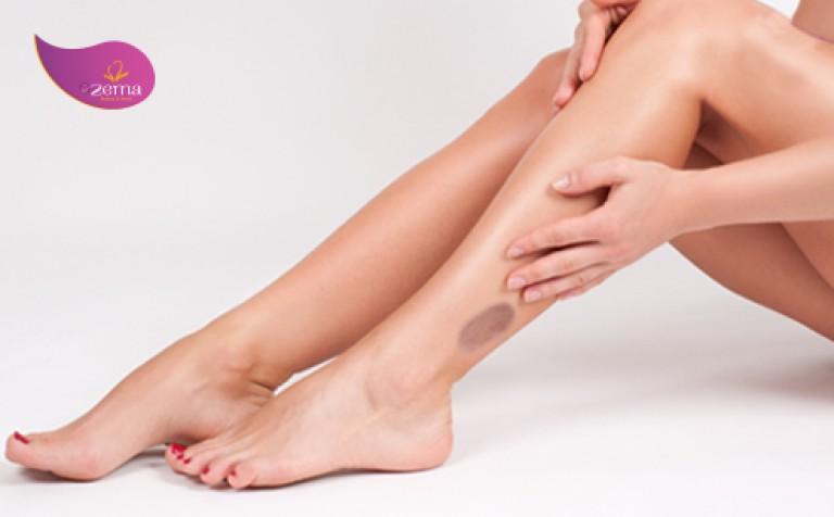 Quy trình điều trị thâm sẹo bằng laser như thế nào?