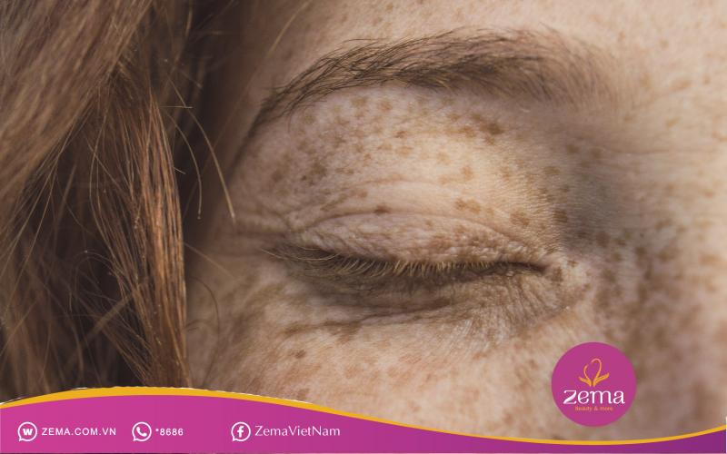 Biết rõ tàn nhang là gì, nguyên nhân và cách điều trị càng sớm càng tốt