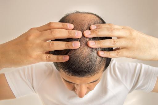 Gợi ý sản phẩm dầu gội trị rụng tóc cho nam hiệu quả nhất