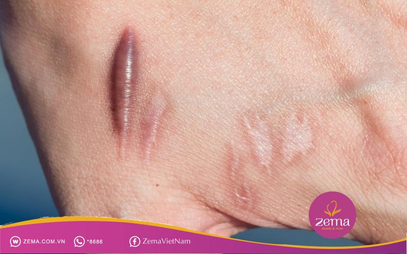 Sẹo lồi gây mất thẩm mỹ cho làn da của bạn