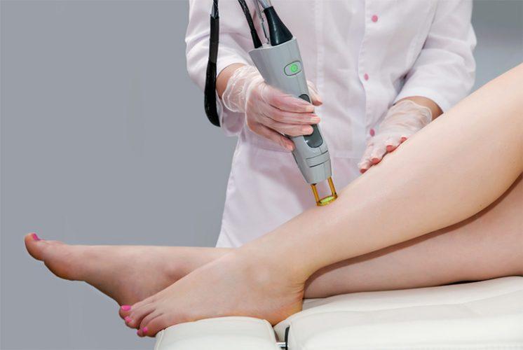 Điều trị dứt điểm viêm nang lông bằng công nghệ E-Light