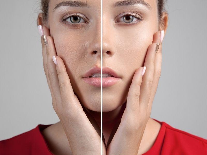 BHA giúp cải thiện cấu trúc da và chống lão hóa