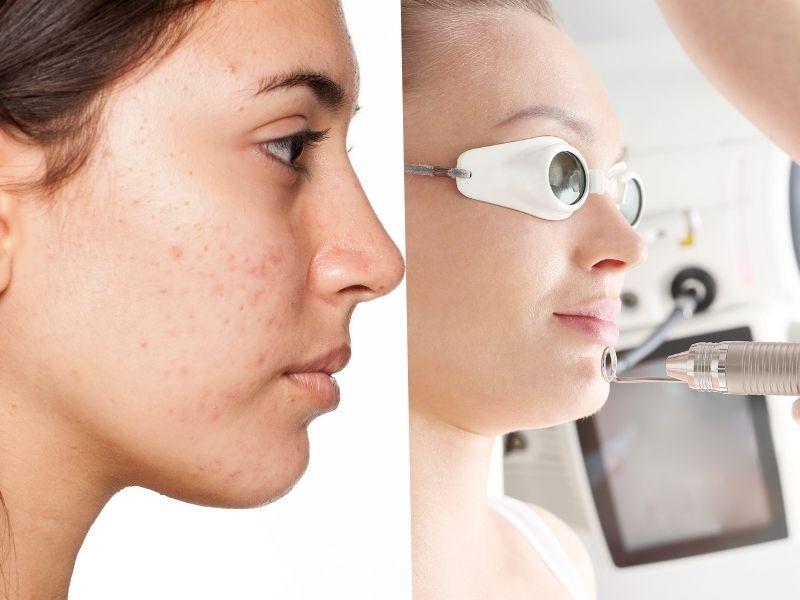Làn da mụn được điều trị với laser