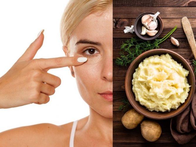 Tuyệt chiêu trị thâm quầng bằng củ khoai tây