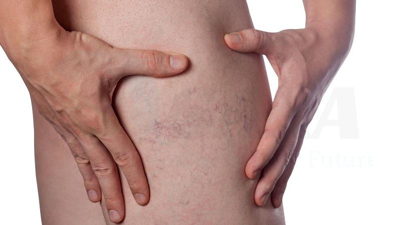 Da bị giãn mao mạch không gây nguy hiểm về sức khỏe
