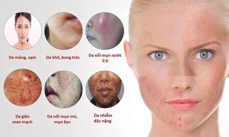 Những dấu hiệu khi da bị nhiễm corticoid