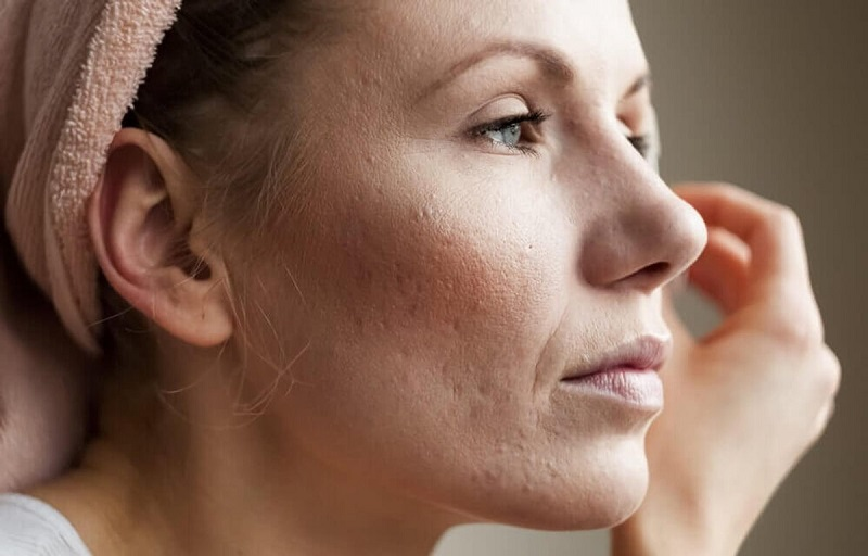 Trước khi tìm loại kem trị sẹo rỗ hiệu quả bạn cần xác định mức độ sẹo rỗ của mình