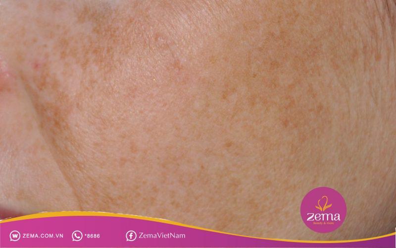 Hiện tượng nám trên da mặt