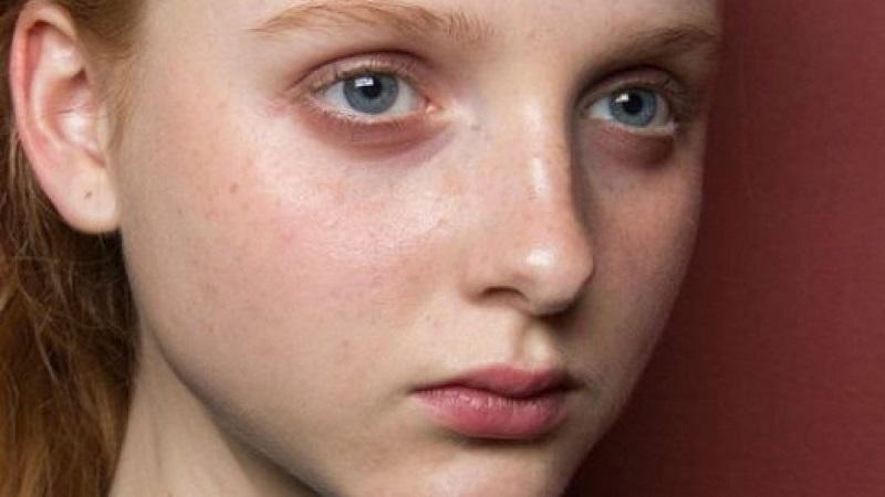Đôi mắt thâm quầng có rất nhiều nguyên nhân