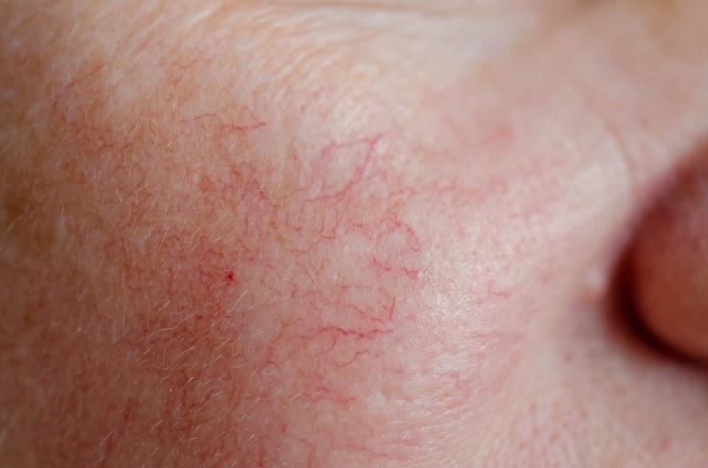 Có thể nhận biết da giãn mao mạch bằng mắt thường