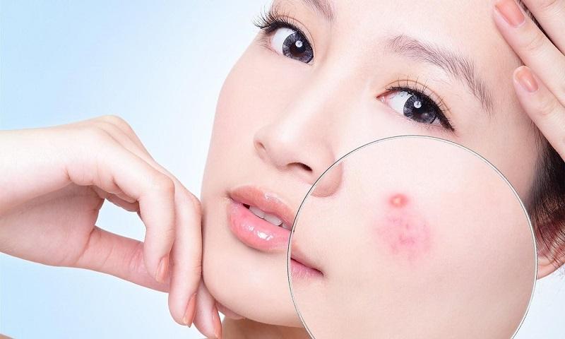 Rối loạn nội tiết là nguyên nhân chính gây mụn và những vấn đề khác trên da