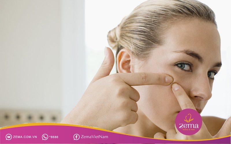 Nặn mụn không đúng cách sẽ khiến da tổn thương