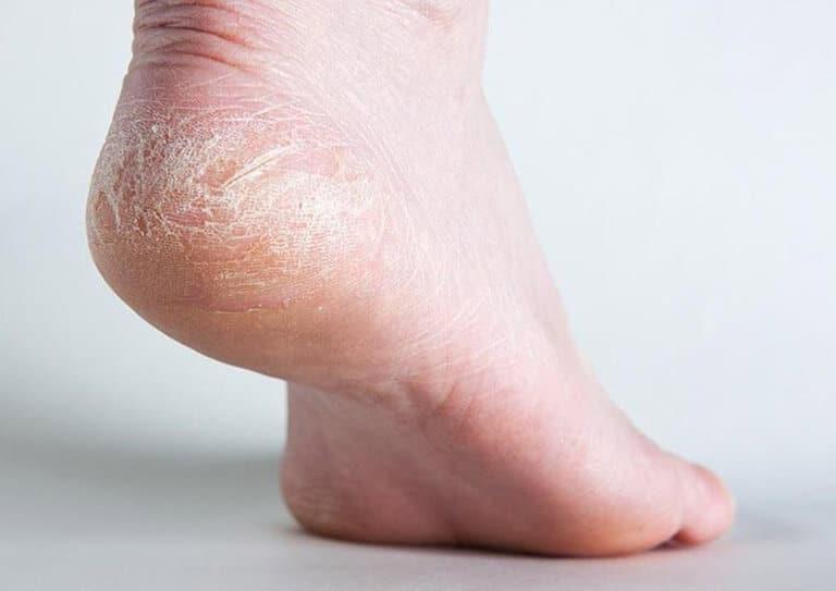 Làn da thiếu ẩm khiến da khô và bong tróc