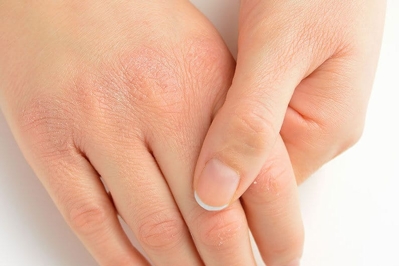 Cách trị khô da tay chân hiệu quả tại nhà