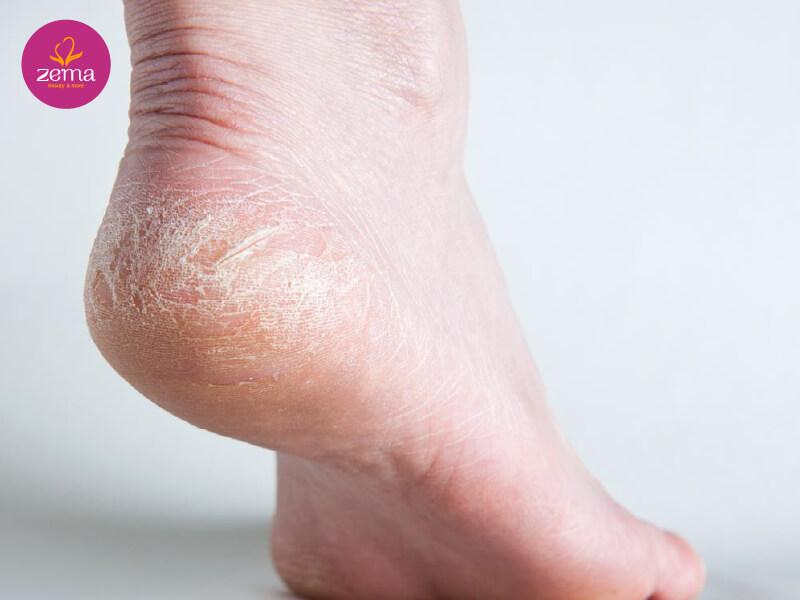Tại sao phải chà hồng gót chân?