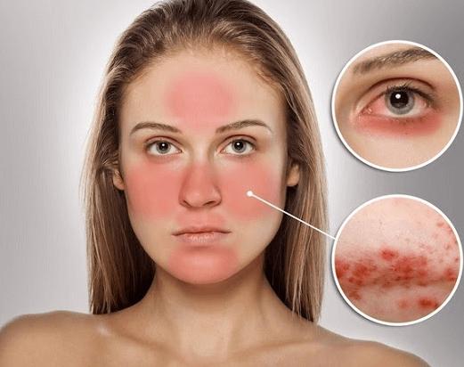 Da nhạy cảm là loại da khó chịu nhất trong mọi loại da