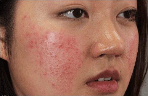 Thông thường, làn da nhạy cảm rất dễ bị nổi mụn nếu sử dụng sản phẩm không phù hợp